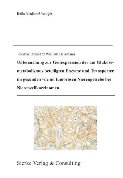 Untersuchung zur Genexpression der am Glukosemetabolismus beteiligten Enzyme und Tranporter im gesunden wie im tumorösen Nierengewebe bei Nierenzellkarzinomen-0