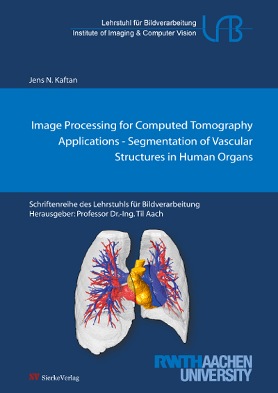 Image Processing for Computed Tomography Applications - Segmentation of Vascular Structures in Human Organs-0