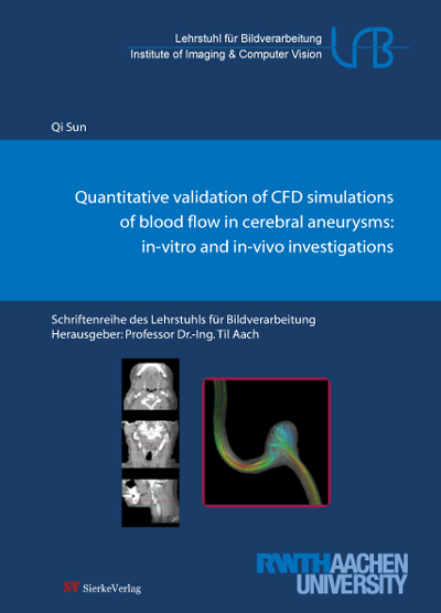Quantitative validation of CFD simulations of blood flow in cerebral aneurysms: in-vitro and in-vivo investigations-0