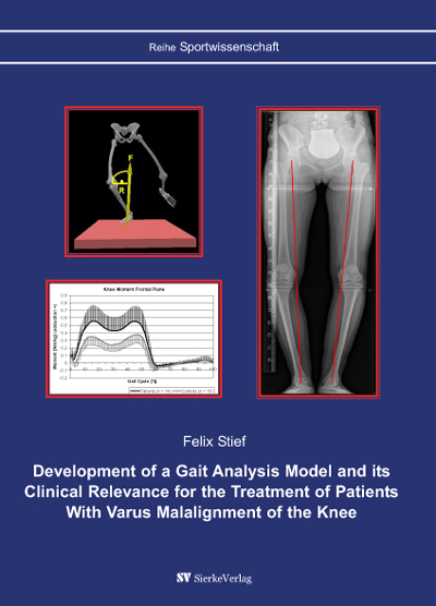 Development of a Gait Analysis Model and its Clinical Relevance for the Treatment of Patients With Varus Malalignment of the Knee-0